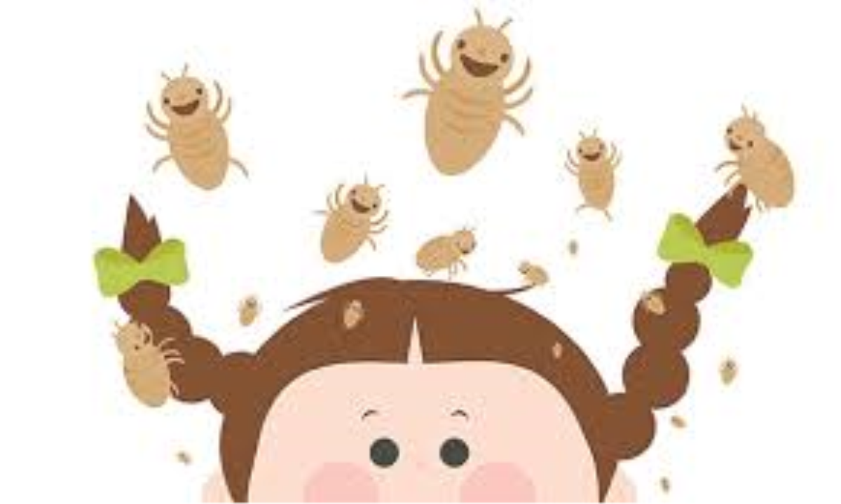 View Email Head Lice Alert